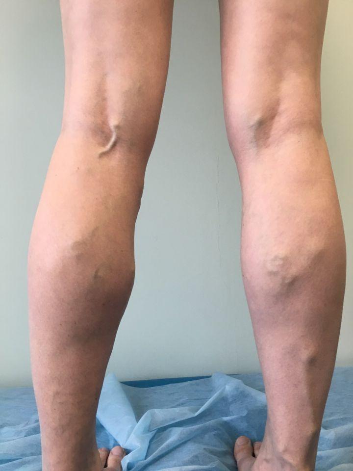 Лазерное лечение вен тромбов суставов анатомия суставов ключицы