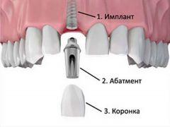 Зубы новые как свои стоматология иплантация
