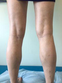 """После операции.Лазер против варикоза: испытано на себе!  Клиника """"Медик"""""""