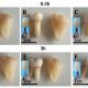 Китайцы предложили абсолютно новый способ быстрого отбеливания зубов